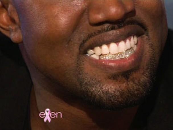 Kanye's Diamond Teeth? Ask A Dentist