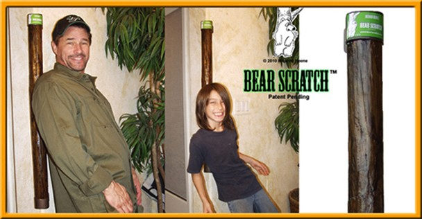 Richard Heene's Bear Scratch