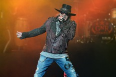 Injured Axl Rose Will Perform In A Cast In Vegas, At Coachella