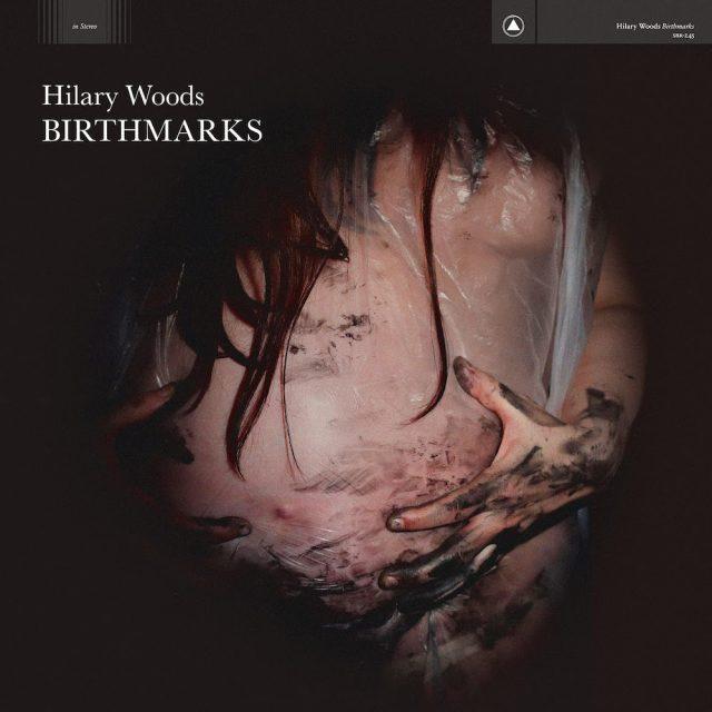 Hilary-Woods-Birthmarks